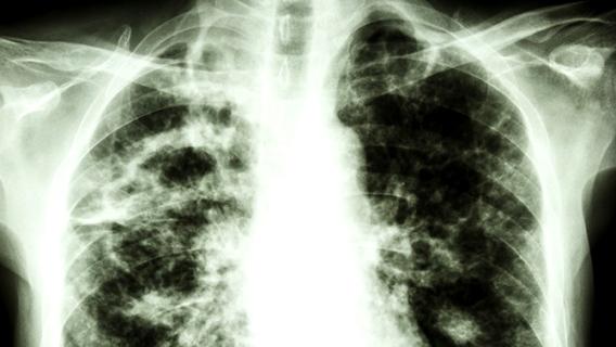 Tuberculose: Plus mortelle que le Covid