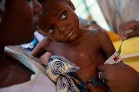 10 millions d'enfants exposés à la malnutrition…