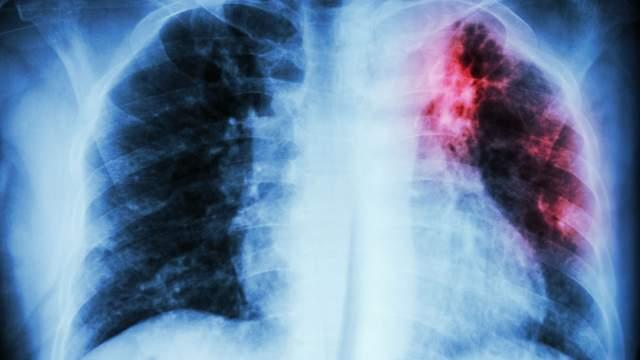 Tuberculose : 1,5 millions de morts en 2020